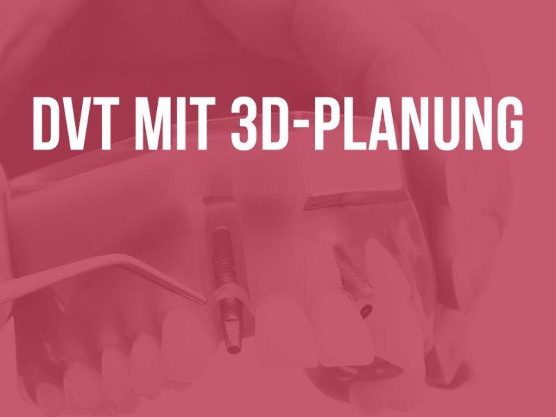 Oralchirurgie am Herzberg - Sichere Diagnostik und Implantatplanung in 3D