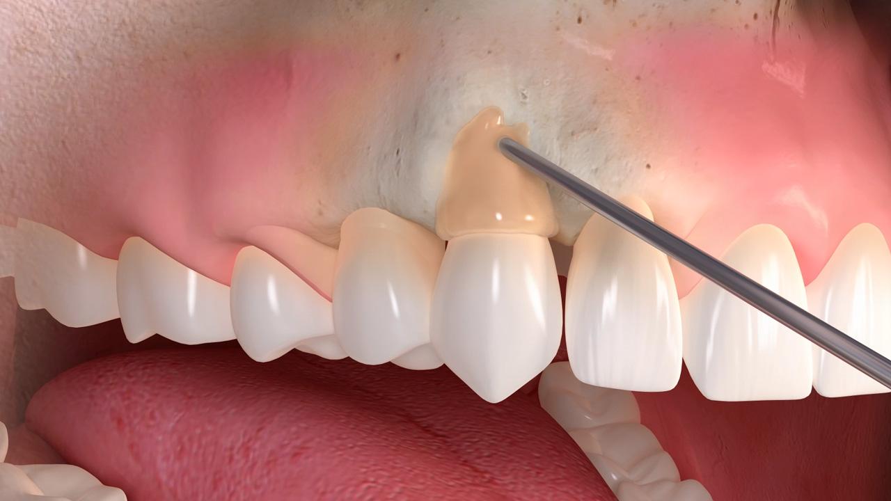 Regenerative Behandlung von Zahnfleischrückgang