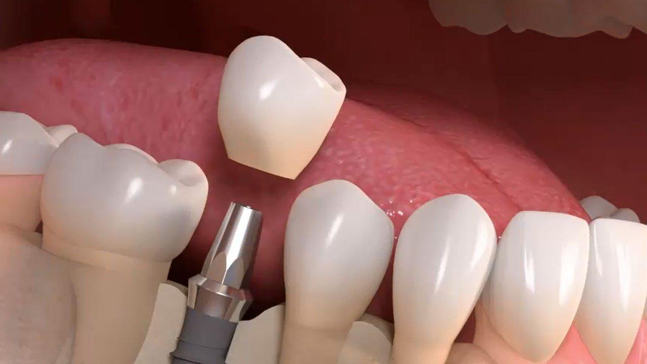 Oralchirurgie Ghais Issa - Implantation als moderne, bewährte Behandlungsmethode um fehlende Zähne zu ersetzen.